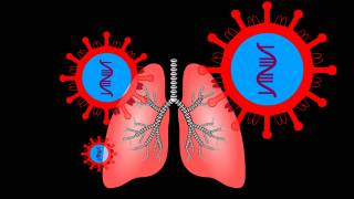depiction of lungs infected with SARS-Cov-2